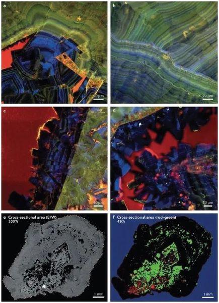 腎結石地質學